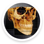 3d digital x-rays available at caggiano orthodontics of parsippany