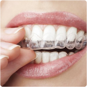 invisalign treatment in montville nj