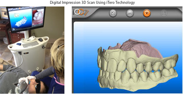 digital impression 3d scans with itero