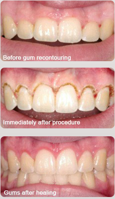 gum recontouring with laser treatment