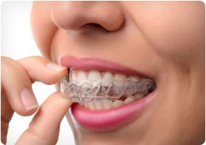 elite provider invisalign in parsippany nj
