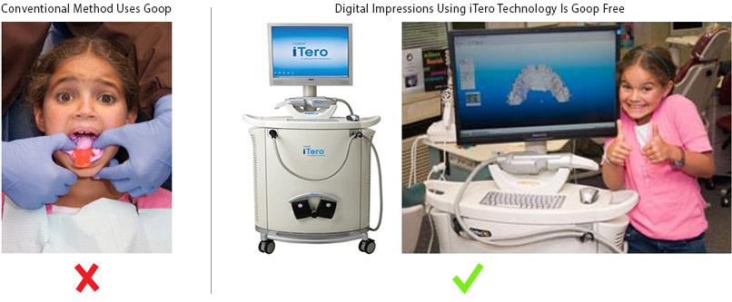 ioc scanner digital impressions for braces