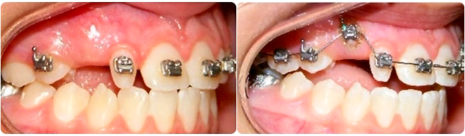 laser treatment for impacted teeth