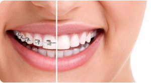 braces near parsippany nj
