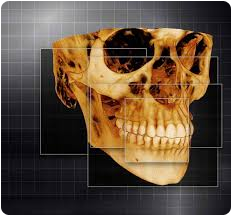 parsippany orthodontic office with 3d digital x-rays