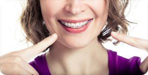 montville nj orthodontist braces myths