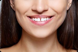 parsippany orthodontist